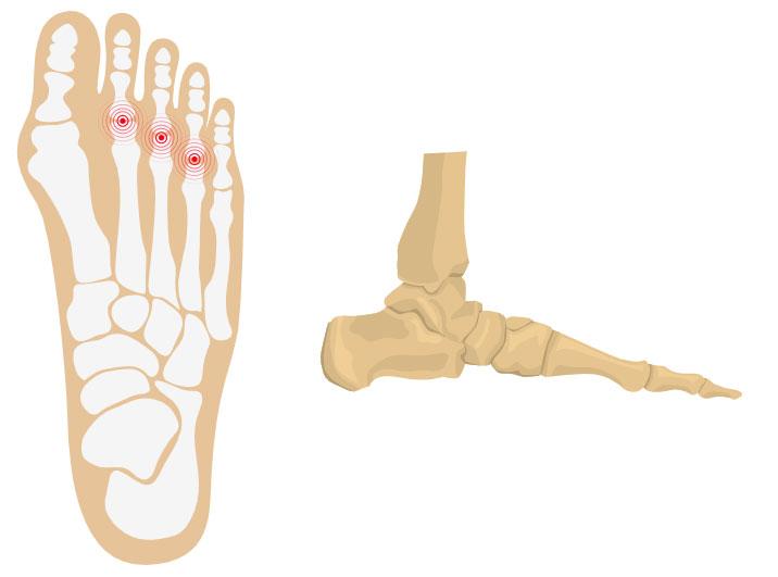 Predislocation Metatarsal Joint